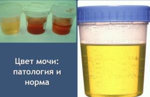Левомицетин пьют при поносе  Лечение гастрита